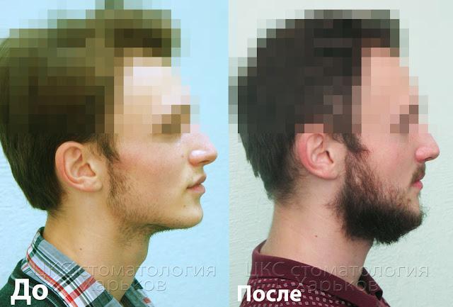 Профиль до и после ортодонтического лечения