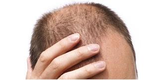 ¿Cuáles son los efectos secundarios del implante capilar?