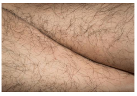 How do you stop unwanted hair growth?