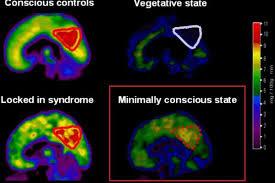 تمكن باحثون في حقل الأعصاب من تعطيل وعي مريضة عن طريق تحفيز مناطق محددة من الدماغ بواسطة إلكترودات في منطقة يطلق عليها اسم  claustrum .