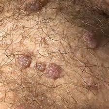Gambar Obat Mujarab Untuk Kutil Di Skrotum Atau Kulit Testis