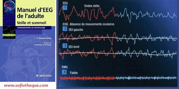 Manuel d'électroencéphalogramme de l'adulte PDF