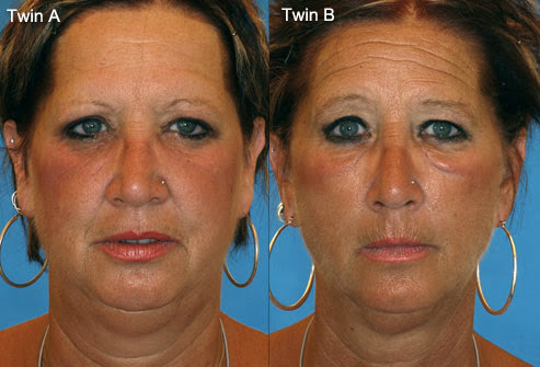 effect od smoking on skin identical twins