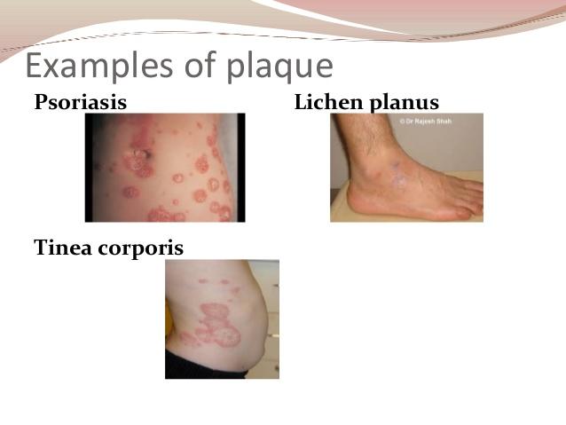 Cauliflower plaque and facial lesion and photos