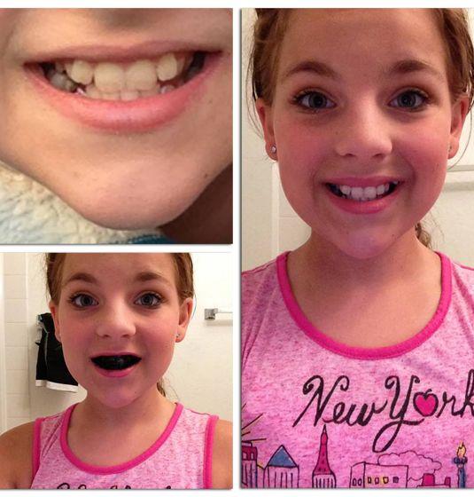 Cara Alternatif Paling Efektif Untuk Mencerahkan Gigi Say Goodby