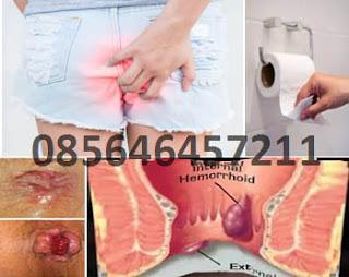 Ambejoss Obat Wasir Herbal's Denature