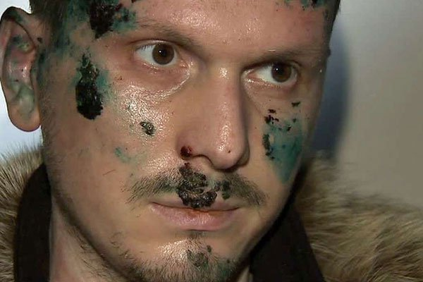 #HalloweenTrueNews :Chechen soldier who plotted to kill Vladimir Putin was wounded in Kiev.