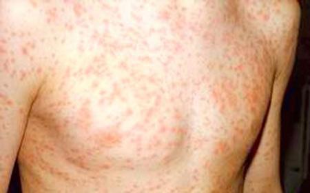 Hasil gambar untuk tanda tanda hiv pada kulit