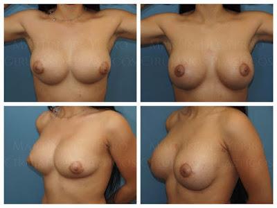 segunda cirugía de mama tuberosa fotografías de antes y después