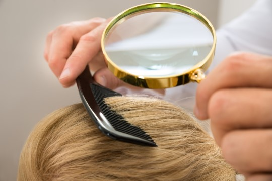 What is Itchy Scalp and what can you do about it? 3