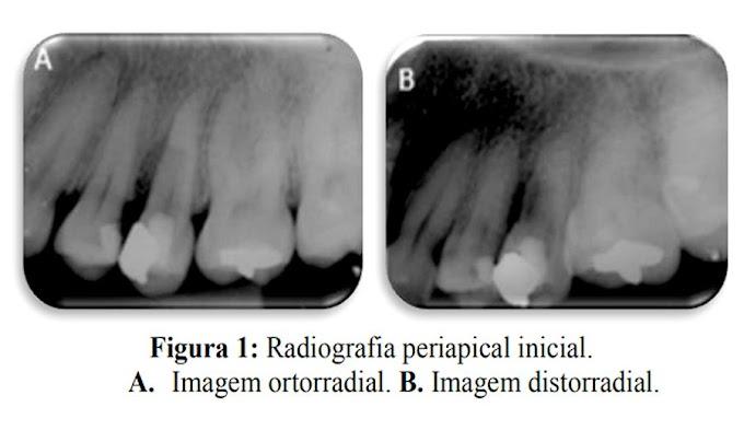 PDF: Perfuração radicular lateral em um dente com calcificação pulpar: um relato de caso