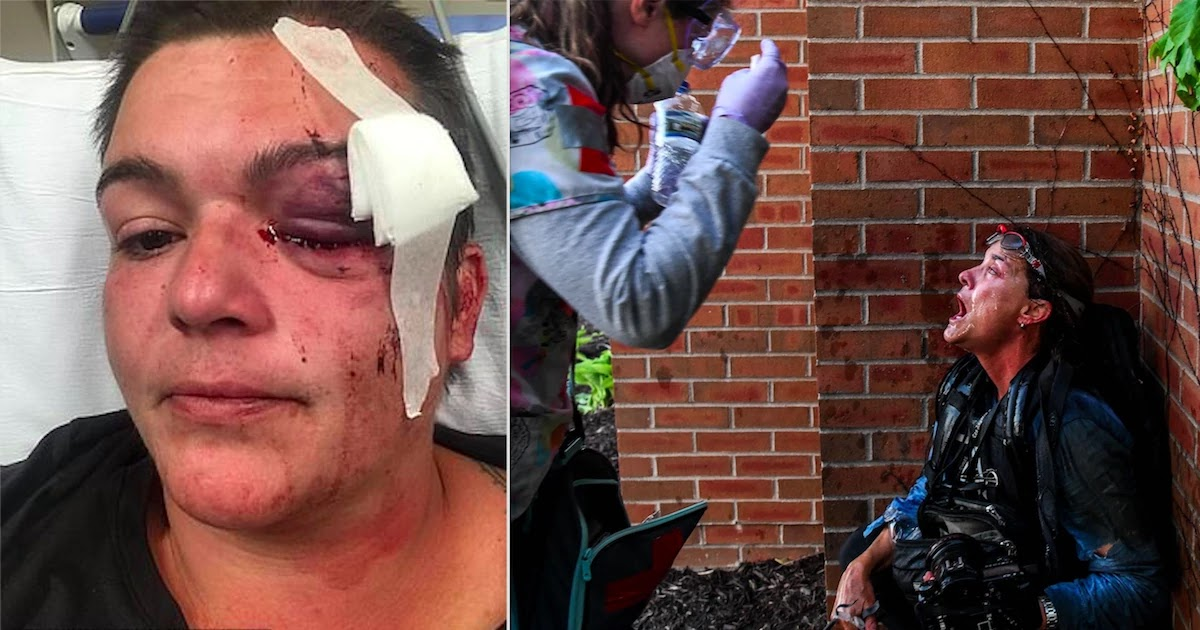 Journalist Permanently Blinded In One Eye After Being Shot With Rubber Bullet, Journalists Across The US Report Being Attacked From Police