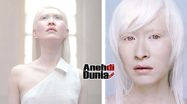 model wanita cantik kelas dunia pemilik kulit paling aneh