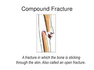 Compound fracture,Fracture Definition,Fracture type,fracture Complications,Nursing Care,Medical Management,Surgical Management
