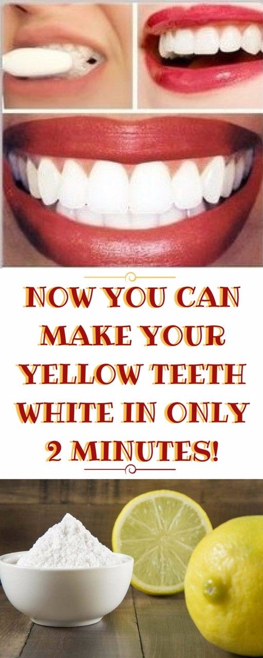 NOW YOU CAN MAKE YOUR YELLOW TEETH WHITE IN ONLY 2 MINUTES!