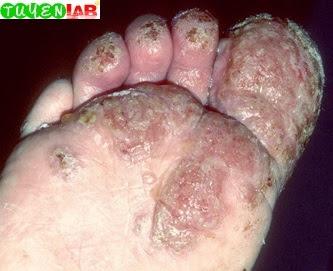 Fig. 5.42 Eczema in Wiskott-Aldrich syndrome