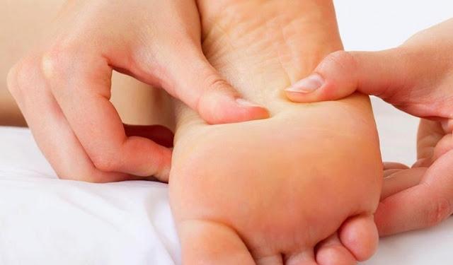 طرق-علاج-مسمار-القدم-والأصابع-بالأعشاب-والطب-البديل