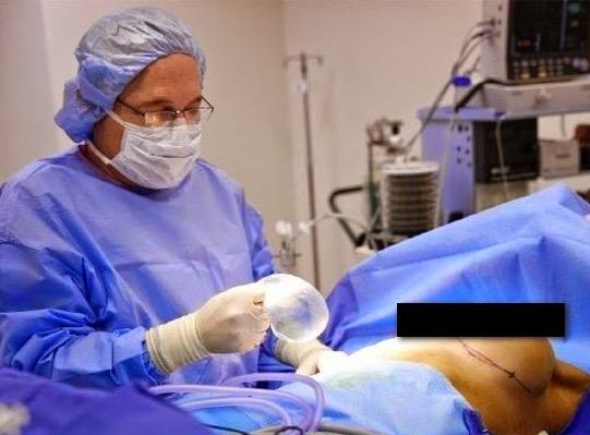 Pembedahan Memasukkan Implan Silicon Untuk Membesarkan Buah Dada