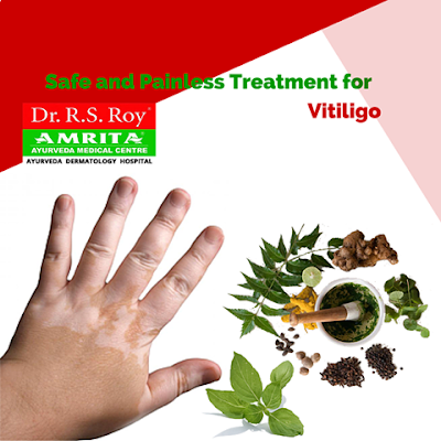 Vitiligo Treatment in Kerala