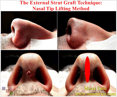 Nose tip drooping - Nose tip reshaping - Lifting the Nasal Tip - Technique of Nasal Tip Lifting - The External Strut Graft Technique