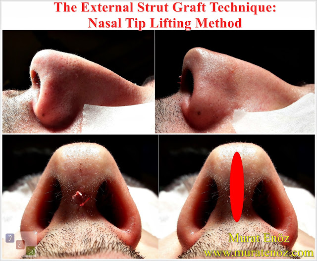 Nose tip drooping - Nose tip reshaping - Nose tip plasty - Nose tip reduction - Nasal tip plasty - Nasal tip rhinoplasty - Rhinoplasty in Istanbul - Rhinoplasty in Turkey - Lifting the Nasal Tip - Technique of Nasal Tip Lifting - The External Strut Graft Technique