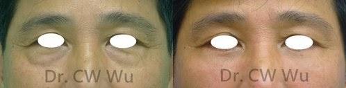 眼袋-pJSuLtbz0aezSsYClxH1eQ