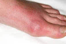 17 Natural Home Remedies For Gout Attack