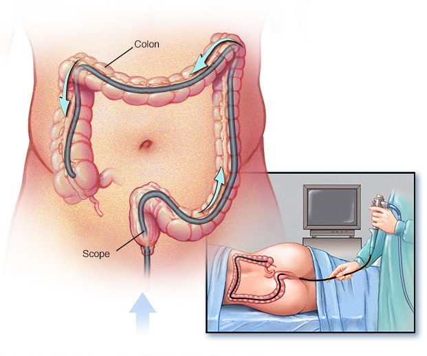 Signs Of Colon Cancer In Men