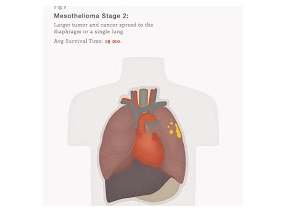 Mesothelioma Life Expectancy
