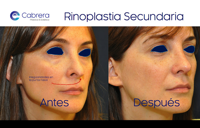 Caso 3 rinoplastia secundaria Córdoba