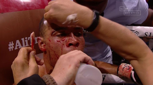 BLOOD BATTLE: George Groves beats Chris Eubank Jr in brutal and bloody - (PICTURES)