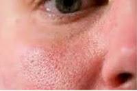 Penyebab Pori-pori Besar dan Cara Mengatasinya