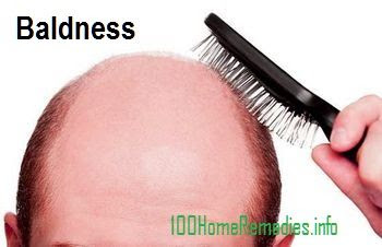 Baldness natural remedies