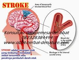 obat stroke herbal,obat herbal stroke,obat stroke denature,obat lumpuh separo,obat stroke ringan,obat stroke berat