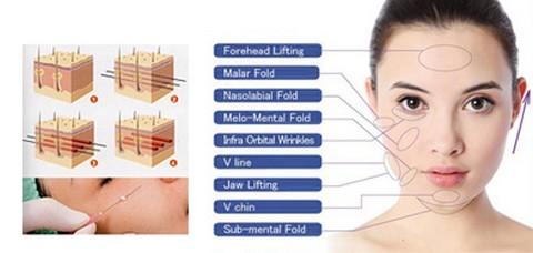 Căng da mặt bằng chỉ sinh học - độc đáo với công nghệ Hàn Quốc