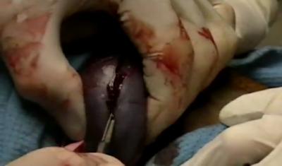 Teknik Operasi Nephrotomy & Nephrectomy pada Hewan (Bedah Urinaria)