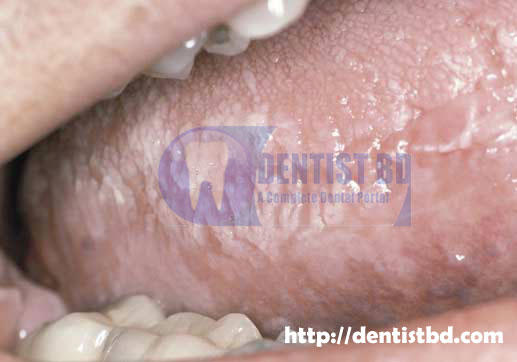Clinical features of Hairy Leukoplakia