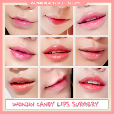 Get Your Candy Lips At Wonjin Beauty Medical Group
