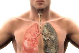 Hilangkan Tar dan Nikotin dari Paru-paru dengan Cara Alami Ini