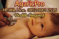 Cara Mengobati Bronkitis pada Anak Bayi yang Ampuh