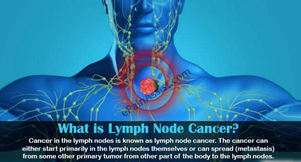 Cancer Spread to Lymph Nodes Life Expectancy