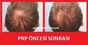 prp saç tedavisi yaptıranlar 21