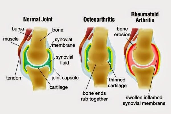 Nyeri pada tulang pinggul sebelah kiri