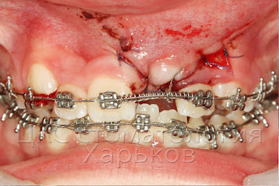 После операции сверхкомплектных зубов