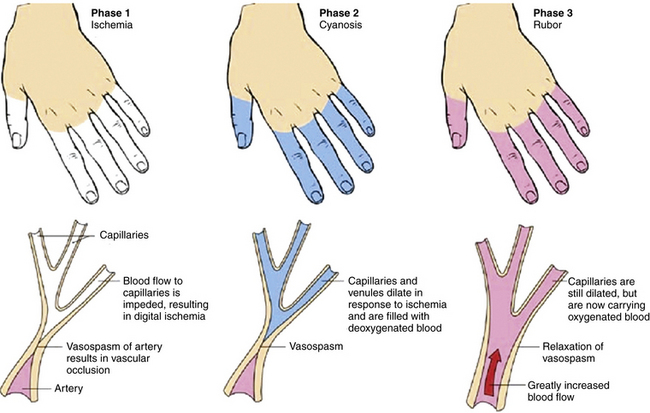 Symptoms of Raynaud's syndrome