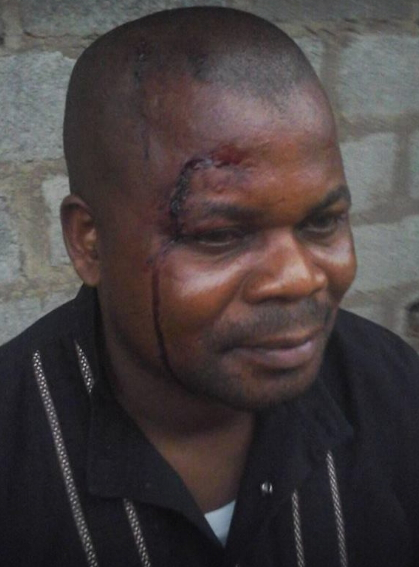 man escape unhurt after robbers shot him in abuja