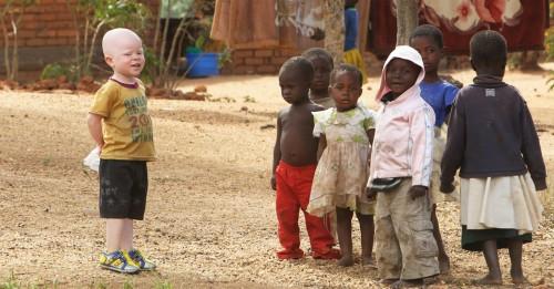 Niños de raza negra y niño albino