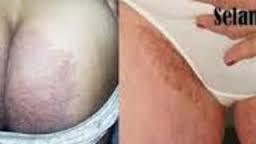 cara menghilangkan gatal di bokong secara alami dan aman