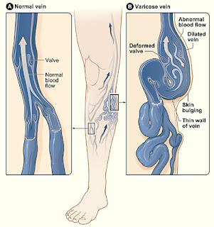 natural ways to cure varicose veins