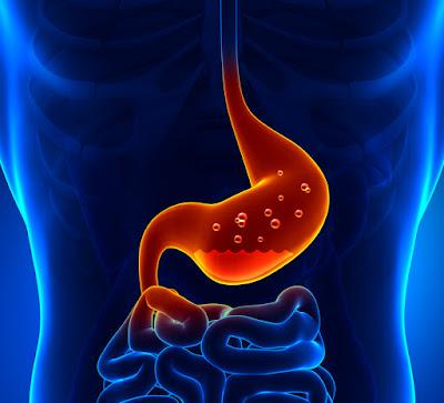 http://www.vikramsclinic.com/gastroesophageal-reflux-diseasegerd.html